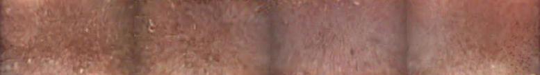 CaseStudy3_Img2_Irregular duodenal mucosa
