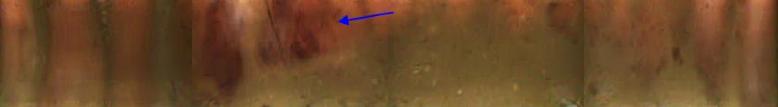 CaseStudy#4_Img8_ hemorrhagic lesion in proximal colon
