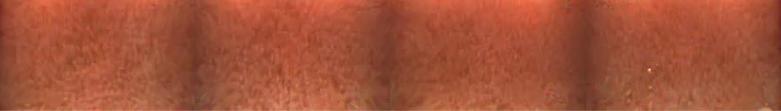 CaseStudy#5_Img3_irregular duodenal mucosa