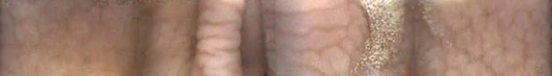 CaseStudy#9_Img1_irregular gastric mucosa